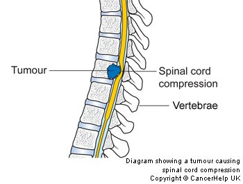 dexamethasone for spinal cord compression