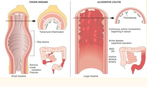 dexamethasone for ulcerative colitis