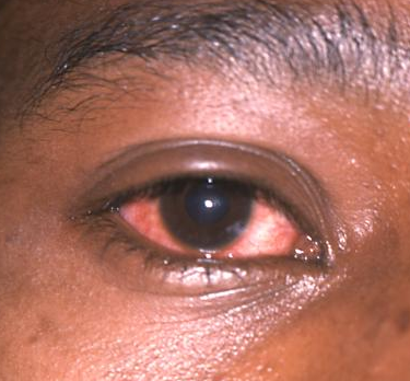 dexamethasone for pink eye