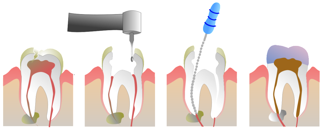 Dexamethasone for root canal